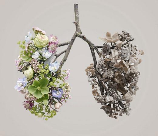 Fisioterapia respiratoria EPOC